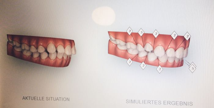invisalign-unsichtbare-Zahnkorrektur-smilike-berlin-unsichtbare-Zahnspange