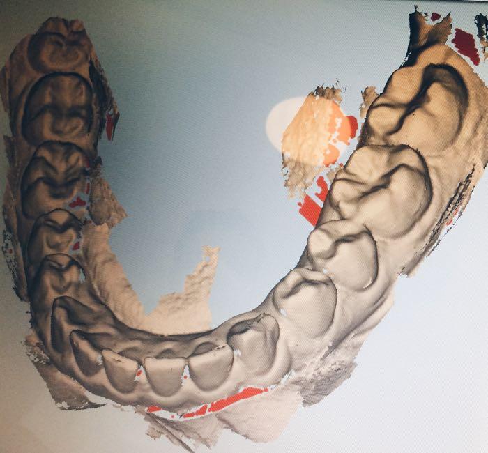 invisalign-unsichtbare-Zahnkorrektur-smilike-berlin-unsichtbare-Zahnspange-Zahnlücke-wegmachen